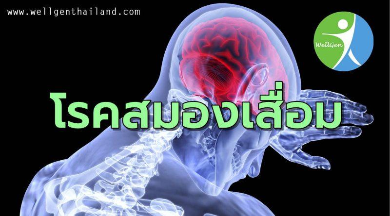 โรคสมองเสื่อมหรืออัลไซเมอร์คืออะไร