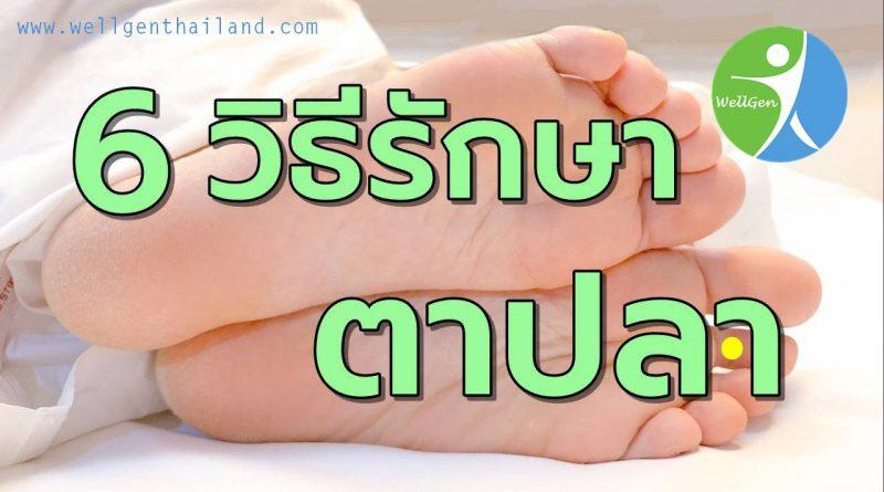 6วิธีรักษาตาปลาที่ฝ่าเท้า