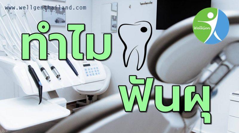 ทำไมฟันผุเกิดจากอะไร